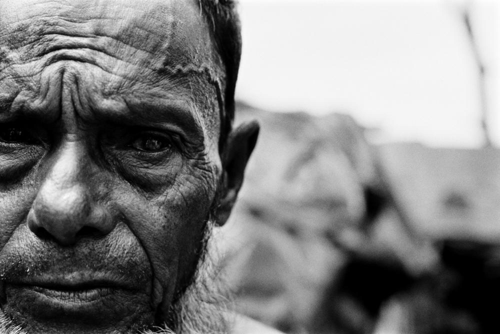 Image by Greg Constantine. Bangladesh, 2009. Blind in one eye after being beaten in the head during forced labor, this man fled Myanmar in the mid-1990s, one of an estimated 200,000 undocumented Rohingya living in neighboring Bangladesh, according to Human Rights Watch.